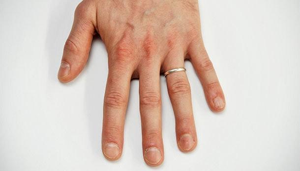 skøre negle vitaminmangel