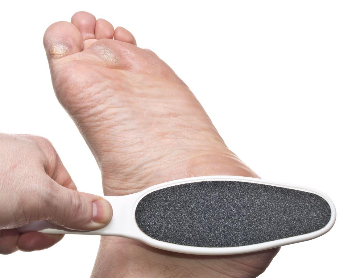 behandling af hård hud på fødderne