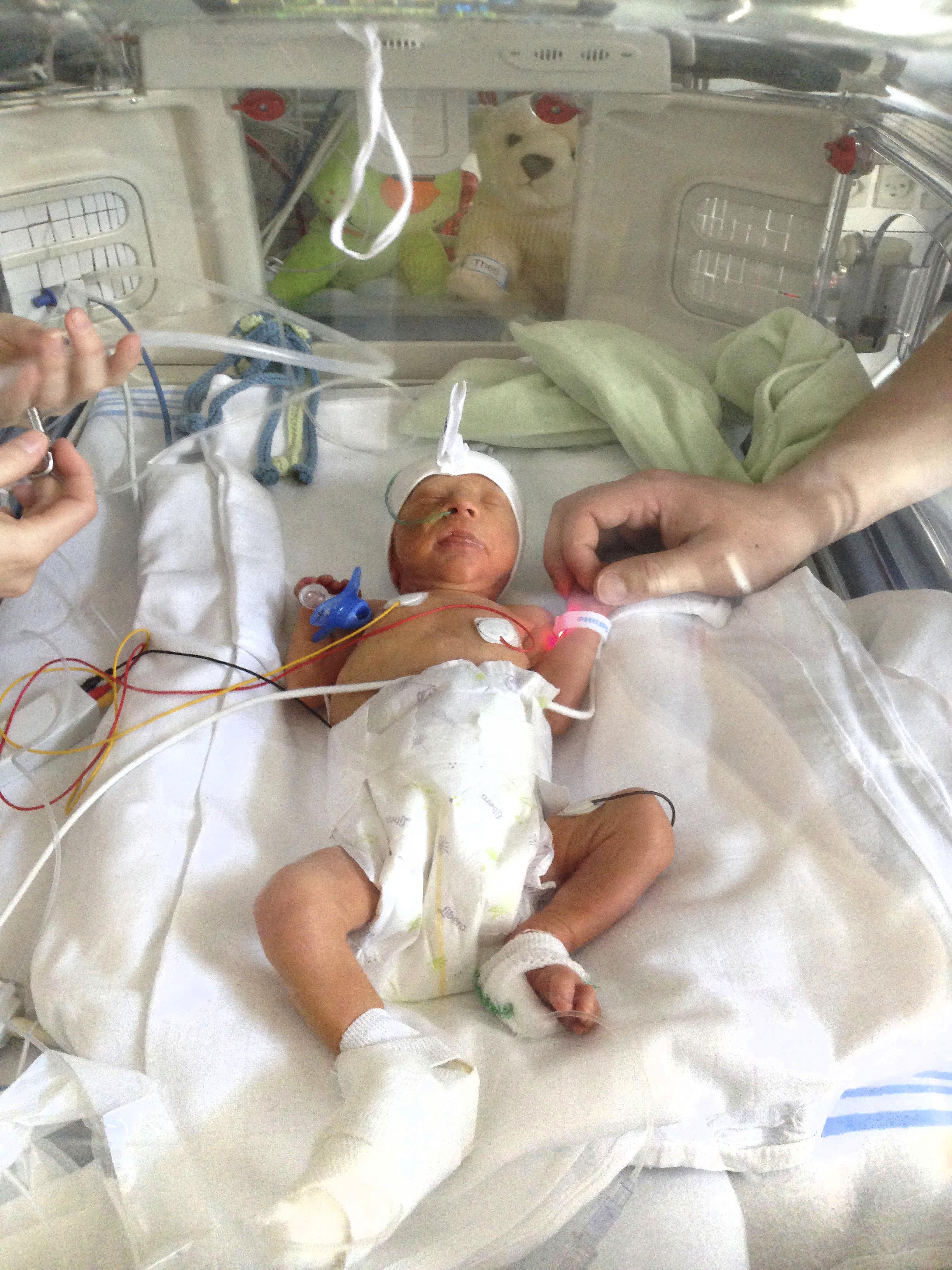 Præmatur og dødsyg | Valdemar blev født to måneder for tidligt