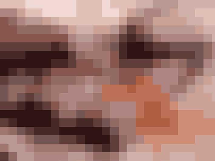 For nogle bliver huden uren, når kroppen ikke kan forbrænde alt det sukker, som man har indtaget. Den forhøjede insulinproduktion, der sker i din krop, når du spiser sukker, kan faktisk også øge produktionen af det mandlige kønshormon testosteron samt forsage øget talgproduktion og akne.